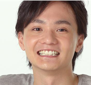 菅裕輔のプロフィールと父親は有名人!バカボン家族の絆?